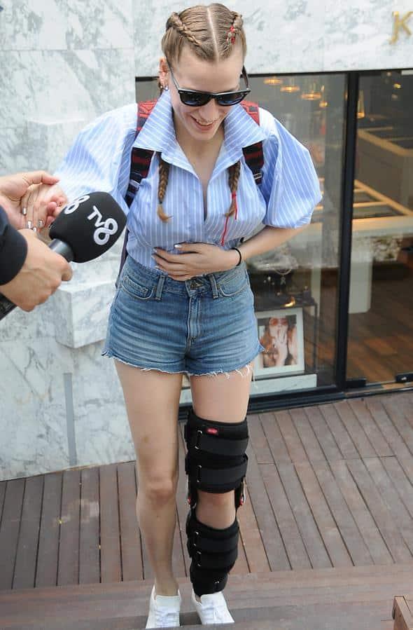 Serenay Sarıkaya: Yaşadığı talihsiz kazayı anlattı